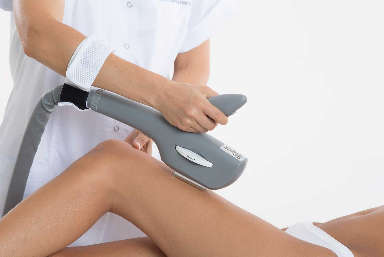 dauerhafte Haarentfernung Behandlung Beine
